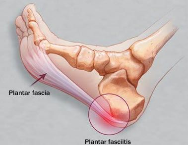 048591d3edf3e1abac1f838cd899bd8f--plantar-fasciitis-exercises-plantar-fasciitis-treatment.jpg
